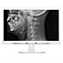 Brilliance LCD monitor with Clinical D-image