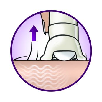 El sistema de levantamiento de vello levanta y elimina el vello pegado a la piel