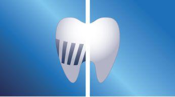 Elimina más placa que un cepillo dental manual