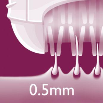 Удаление волосков длиной от 0,5мм