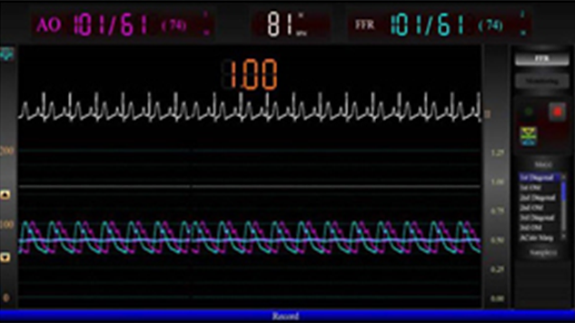 Integrated FFR capabilities - Actionable ischemic measurements