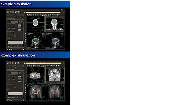 4D CT Motion Management