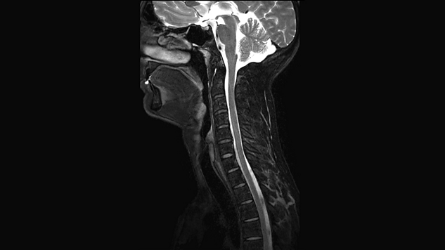 Enhance your imaging for head and neck