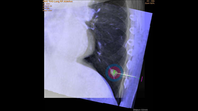 Interactive ablation planning update