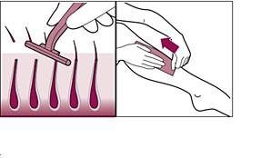 Haar verwijderen van uw huid voordat u de Philips Lumea gebruikt