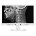 Brilliance Monitor LCD com imagem D clínica