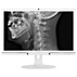 Brilliance Monitor LCD con Clinical D-image
