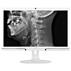 Brilliance LCD monitor s režimom D-image na klinické využitie