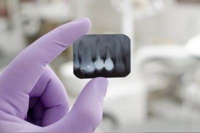 Prévention de la parodontite