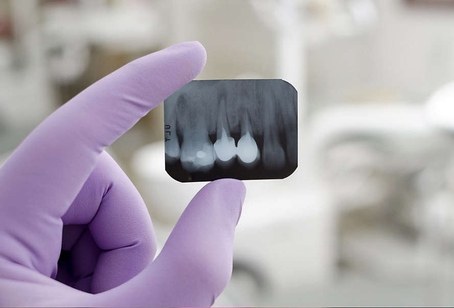 Get to know gum disease