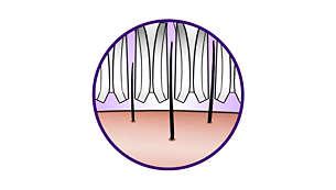 Las pinzas de cerámica texturadas eliminan suavemente hasta el vello más fino