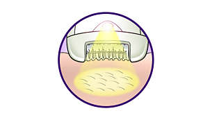 Opti-light helps you target and remove even trickiest hairs