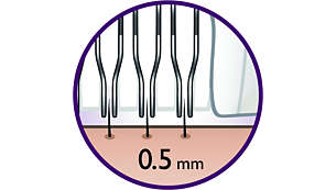 This epilation system removes hair as short as 0.5 mm