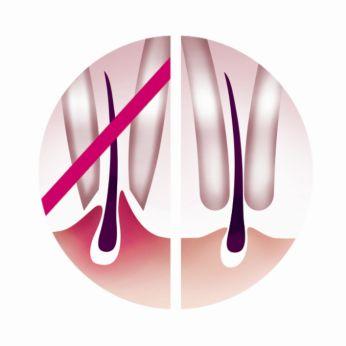 Discos de depilação confortáveis que removem os pelos sem puxar a pele