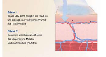 Wohltuende Wirkung: Wärme und körpereigene Prozesse
