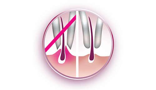 Sanfte Pinzetten entfernen Härchen, ohne dabei an der Haut zu ziehen