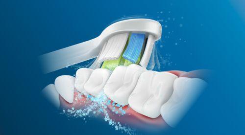 Dynamický čistící účinek zubního kartáčku Philips Sonicare způsobuje proudění tekutiny do mezizubních prostor