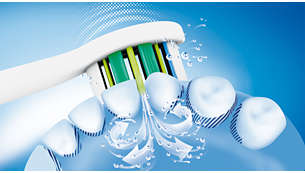 Philips Sonicare's advanced sonic technology