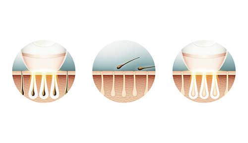 Ljuspulser söver hårsäckarna