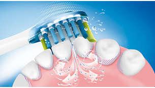 Szabadalmaztatott Sonicare fogkefe technológia