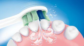 Tecnología patentada de los cepillos dentales Sonicare