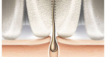 Epilation head in unique ceramic material for better grip