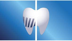Élimine jusqu'à 2fois plus de plaque dentaire qu'une brosse à dents manuelle