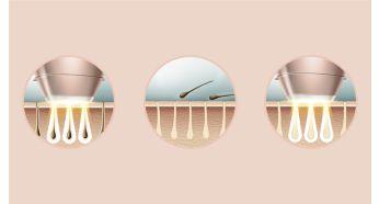 Stworzono w oparciu o profesjonalną technologię IPL we współpracy z dermatologami