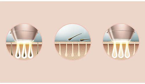 Professionelle IPL-Technologie für zu Hause, zusammen mit Dermatologen entwickelt