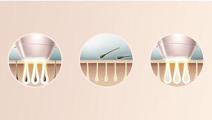 Профессиональная IPL-технология, адаптированная для комфортного домашнего использования, разработанная совместно с дерматологами