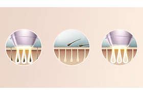 Špičková technológia IPL na domáce používanie, vyvinutá v spolupráci s dermatológmi