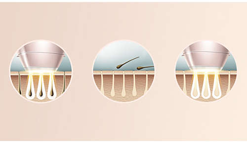 Ontwikkeld door dermatologen voor thuisgebruik