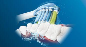 Dinamičnim čišćenjem tekućina se usmjerava na područje između zuba