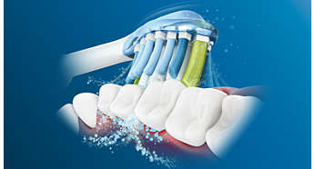 Dynamic cleaning action drives fluid between teeth