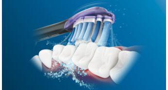 Dynamic sonic action drives fluid between teeth