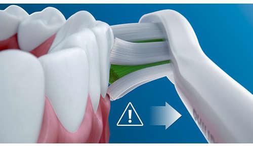 Avisa cuando te cepillas los dientes con demasiada fuerza