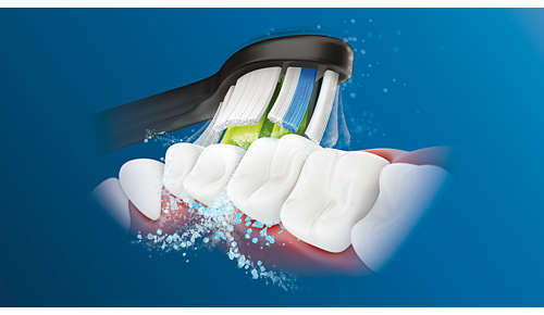 La acción de limpieza dinámica lleva el fluido entre los dientes