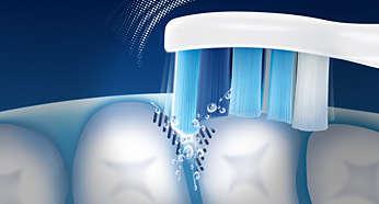 Более эффективная чистка труднодоступных участков по сравнению с обычными зубными щетками