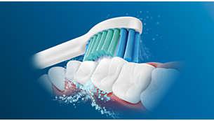 音波水流で歯間の歯垢を除去