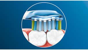 歯や歯ぐきにフィットして、しっかり歯垢を除去