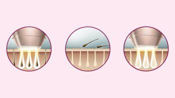 Експертна IPL технология у дома, разработена съвместно с дерматолози