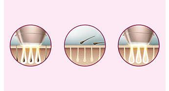 Avancerad IPL-teknik i hemmet som är utvecklad i samarbete med dermatologer