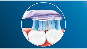 歯や歯ぐきの形状にフィットしてしっかり歯垢を除去