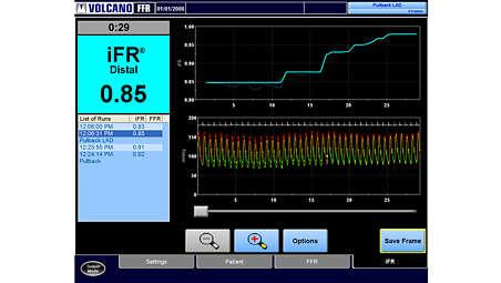 Технология измерения iFRScout с обратной протяжкой