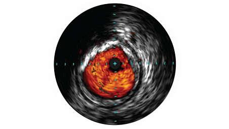 L'échographie intravasculaire contribue à l'évaluation pathologique