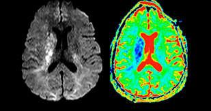 Hochwertige Bildgebung bei MS,  Schlaganfall und Gehirntumor