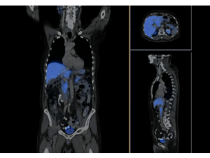 Time-of-Flight PET Imaging Technology