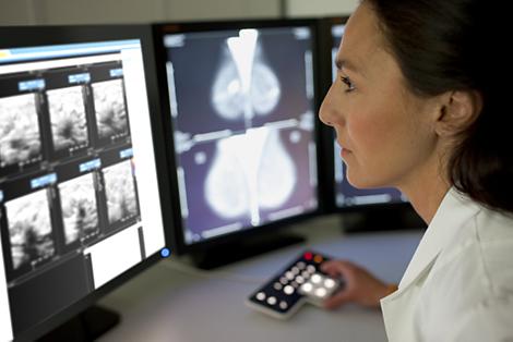 IntelliSpace PACS Mammographie-Arbeitsplatz