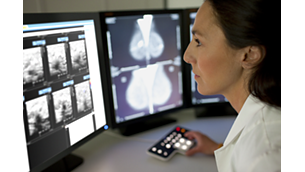 IntelliSpace PACS Mammography