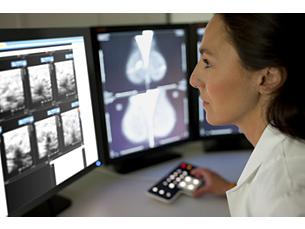 IntelliSpace Radiology con Advanced Mammography Mammografia diagnostica